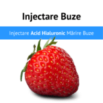 Injectare Acid Hialuronic Marire Buze Juvederm 1