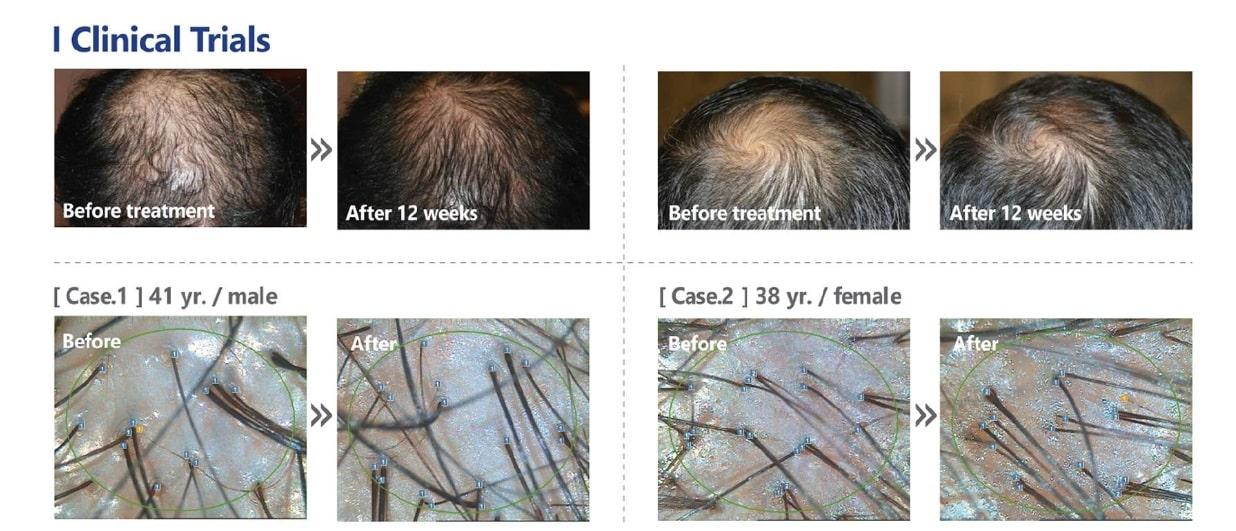 Tratament cu celule Stem alopecie si cadere par