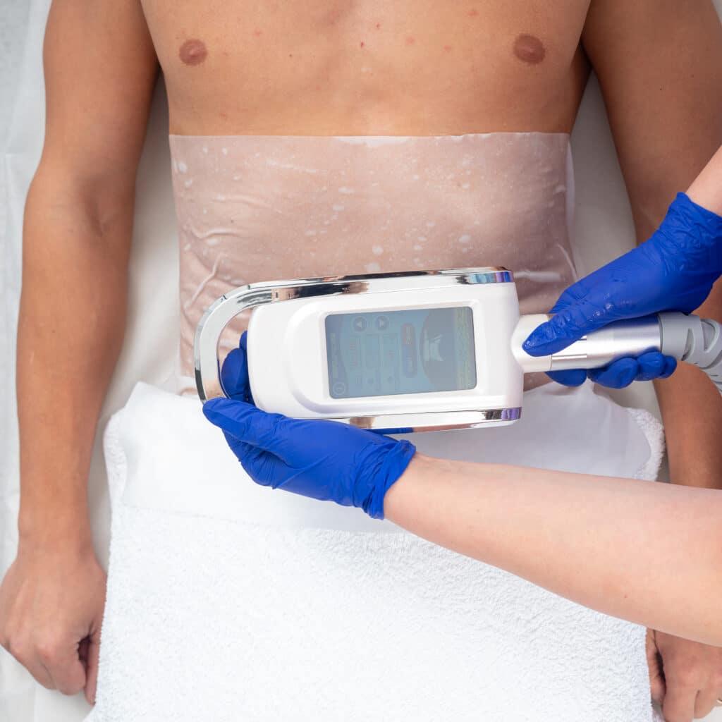 Aplicare tratament criolipoliza abdomen barbati