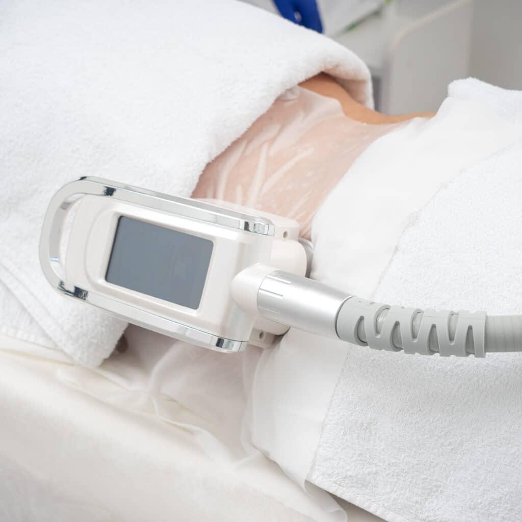 Slabire Solduri Criolipoliza Tratament Corporal