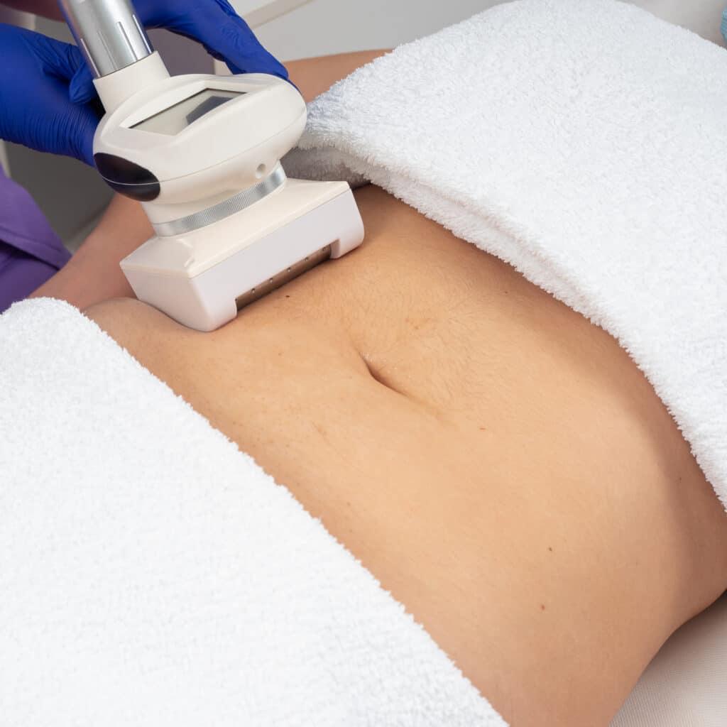 Tratament Burta BodyShape
