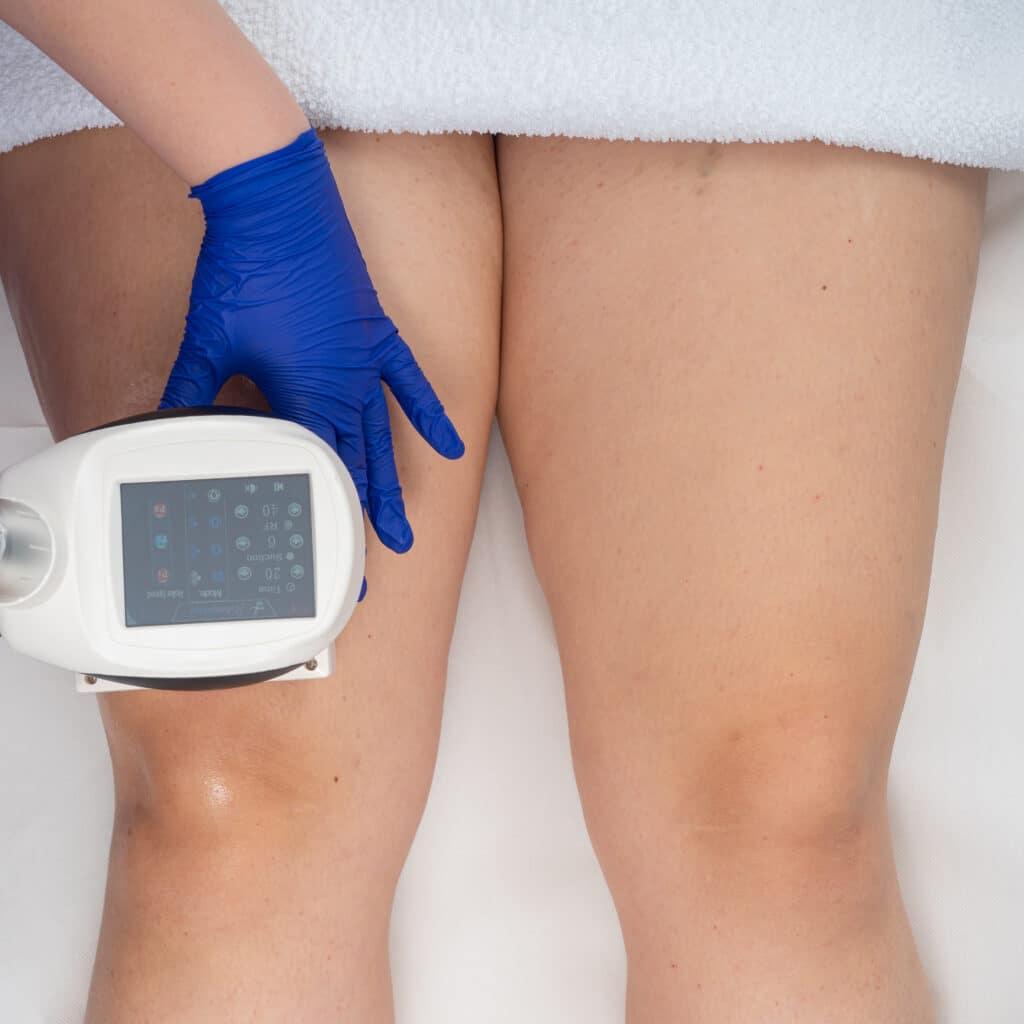 Tratament Picioare BodyShape de sus