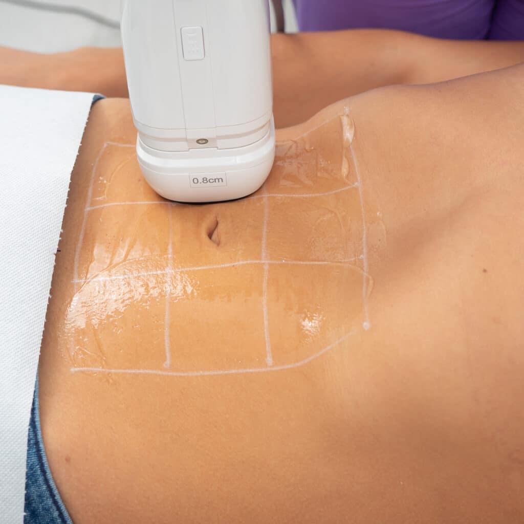 Tratament Slabire Barbati Abdomen HIFU