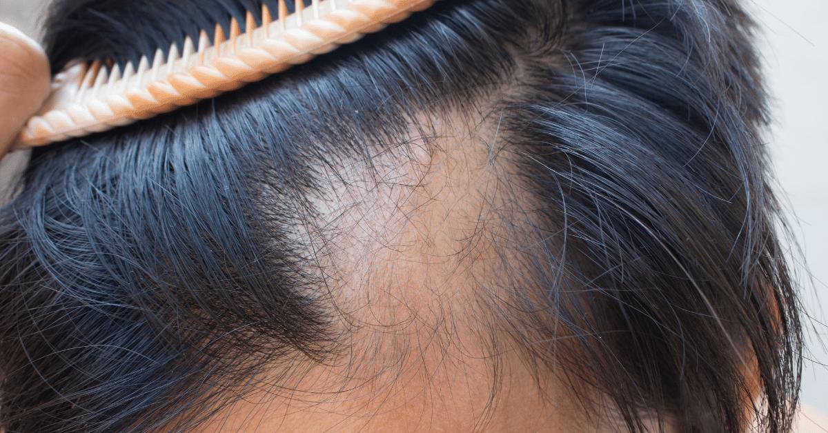 Calvitie-vs-Alopecie
