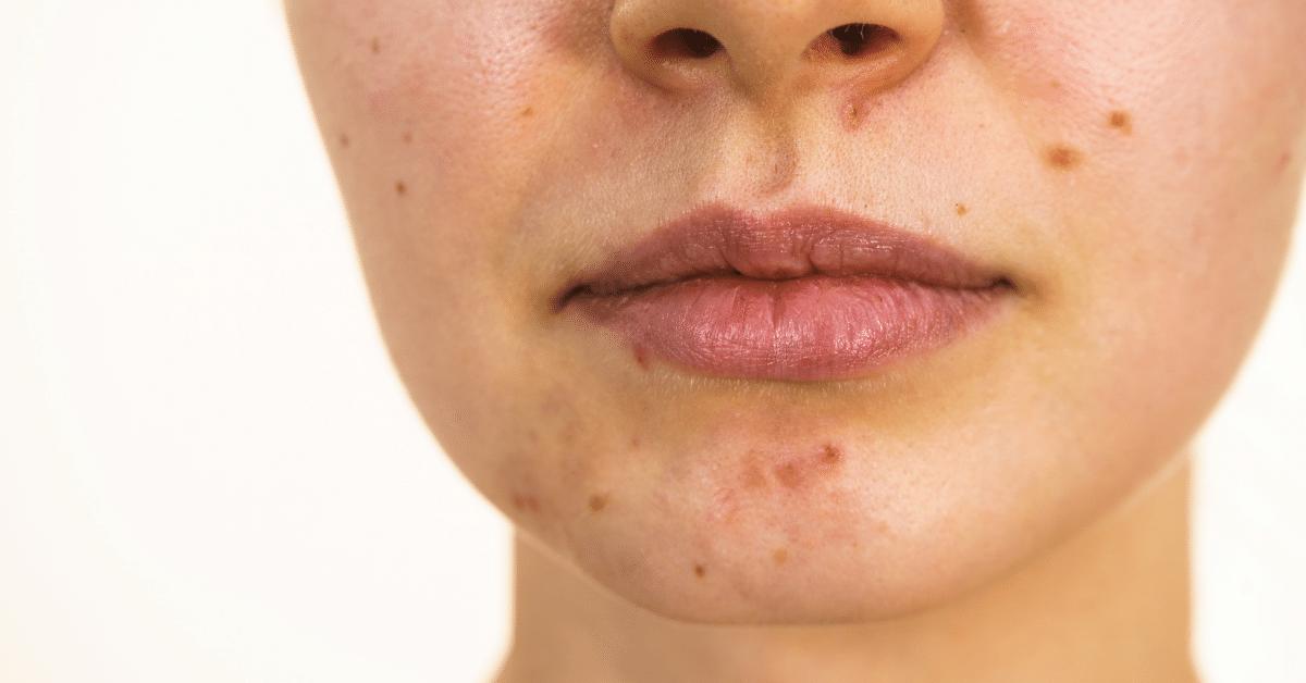 Tratamente acnee Galati