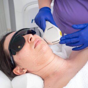 Epilare-Definitiva-Laser-Faciala-scaled