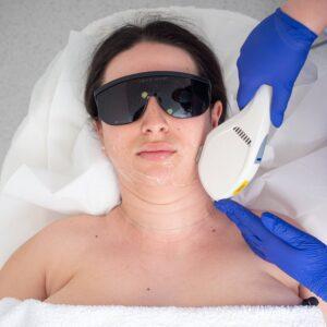 Epilare-Laser-Faciala-scaled